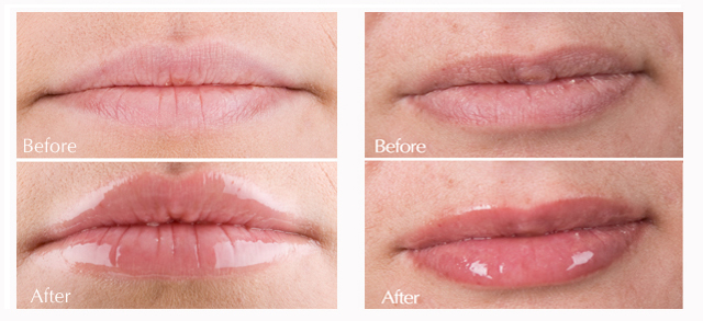 before-after-lip-plumper.jpg
